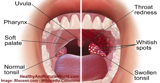 White Spots on Tonsils Causes, STDs, Strep Throat, Cancer