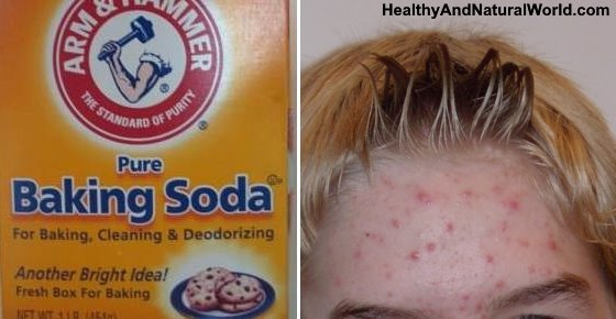 Baking Soda for Acne and Pimples - The Complete Guide