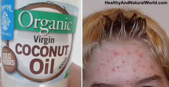 Coconut Oil For Acne - Does It Really Work?