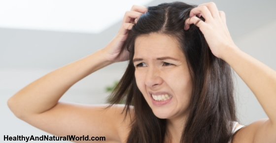 The Best Home Remedies for Dry and Itchy Scalp