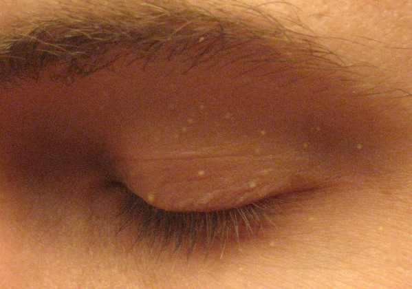 Eye area pimples