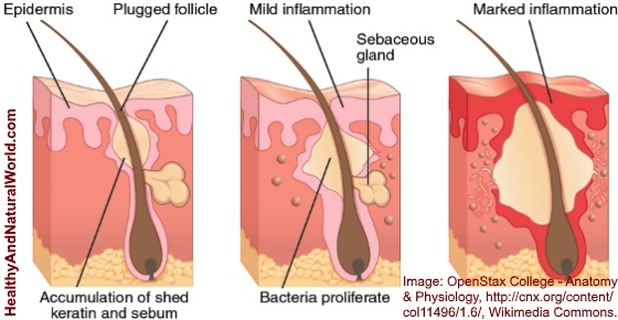 How To Get Rid Of Blind Pimples Quickly And Naturally
