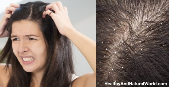 Dandruff vs Dry Scalp: Find the Differences and the Best Treatments