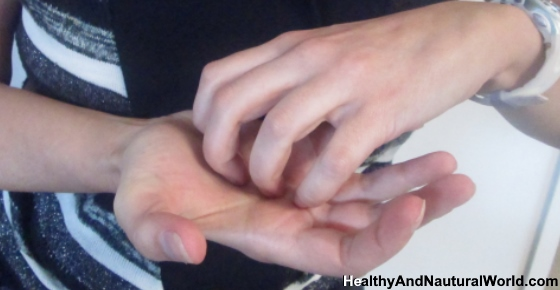 Itchy Palms: Common Causes and Natural Remedies