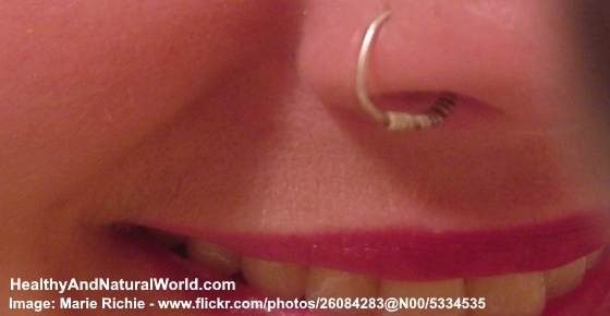 Bump on Nose Piercing - Natural Treatments for Infected Piercing