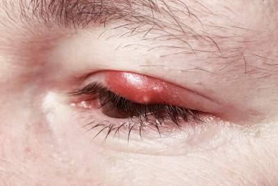 Pimples or Bumps on Eyelids: Causes and Treatments
