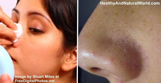 How to get rid of blackheads on face overnight