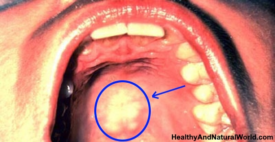 Irritated Roof Of Mouth