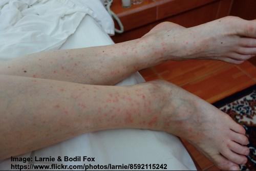 Picture of flea bites on legs