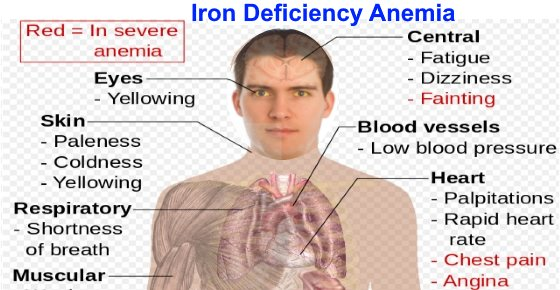 Top Signs Of Iron Deficiency And How To Increase Levels In Your Blood