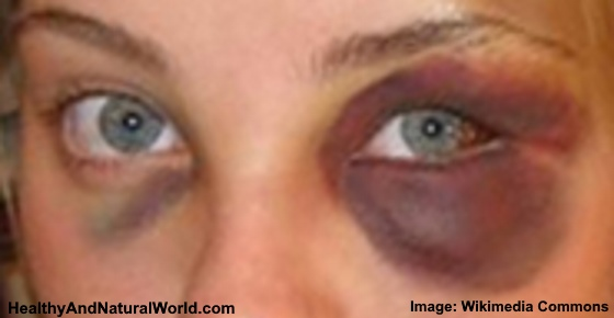 How to Get Rid of a Black Eye Faster: Home Remedies that Really Work