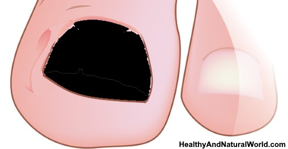 Black Toenail - Causes, Treatment and Prevention
