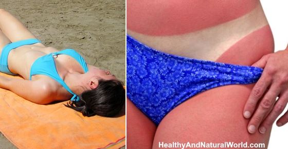 How Long Does It Take for a Sunburn to Heal?