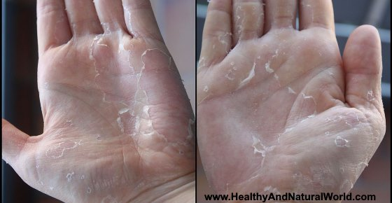 Peeling Skin on Hands or Fingers: Causes and Treatments