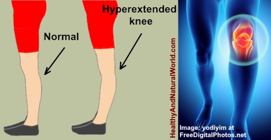Hyperextended Knee: Causes, Treatments & Prevention