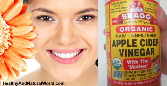 How to Use Apple Cider Vinegar (ACV) for Acne