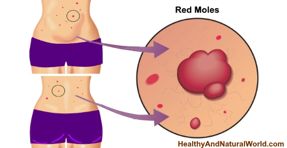 What Causes Red Moles On Skin And How To Get Rid Of Them