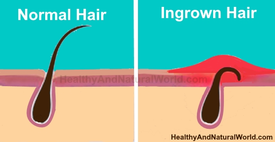 How to Naturally Get Rid of Ingrown Pubic Hair and Bumps in Pubic Area