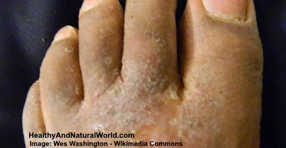skin peeling between toes