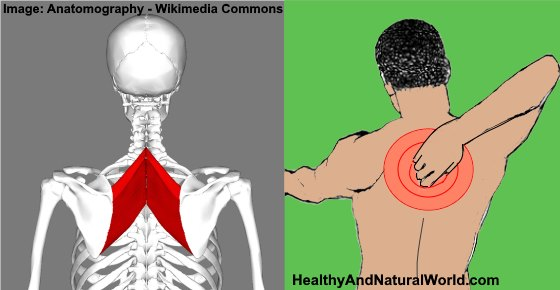 Rhomboid Muscle Pain: Causes, Treatments and Prevention