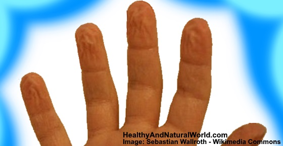 Pruney fingers: Causes, Treatments and When to See a Doctor
