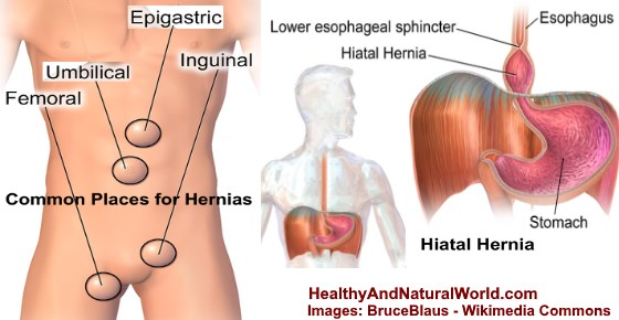 Pulled Abdominal Muscles vs. Hernia