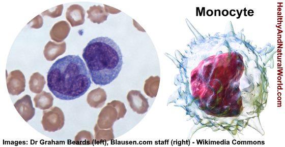 High or Low Monocytes in Blood Test - What Does It Mean?
