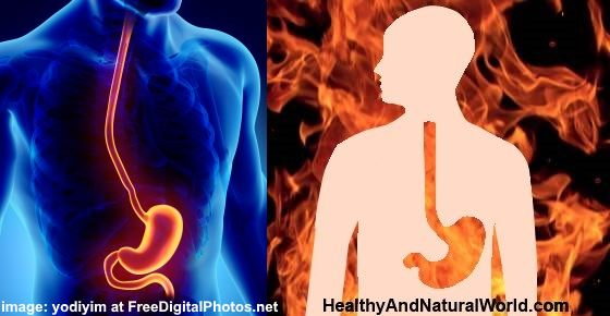 How to get rid of Heartburn (Acid Reflux) & Natural Antacids