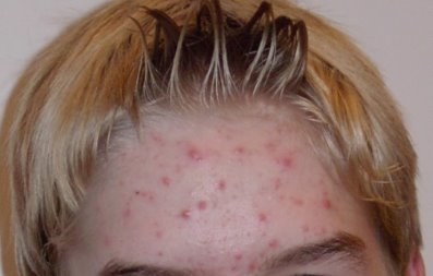 How To Get Acne Off Your Back Naturally