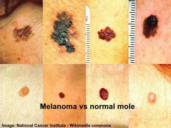 melanoma vs normal mole