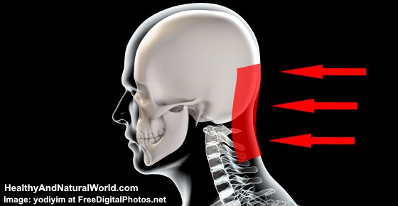 Pain in Base of Skull: What Headache at Base of Skull Means