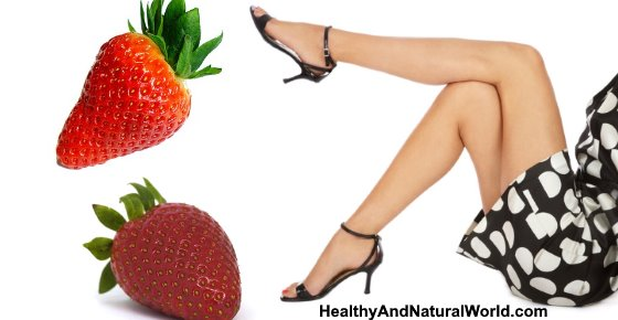 Strawberry Legs: Causes and How to Get Rid of Them with Home Remedies