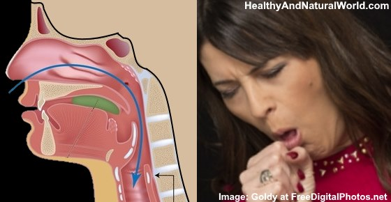 Coughing Up Brown or Black Mucus: What It Means
