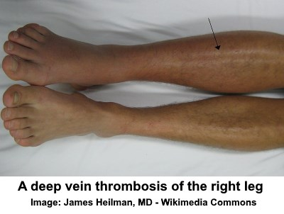 deep vein thrombosis in leg
