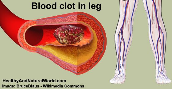 A Blood Clot In Your Leg That Is Associated With Deep Vein Thrombosis DVT Can Cause Lower To Be Sore Swollen And Red