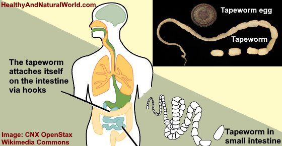 Tapeworms in Humans: Symptoms and Treatments